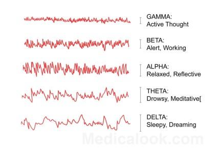 brain-waves-large